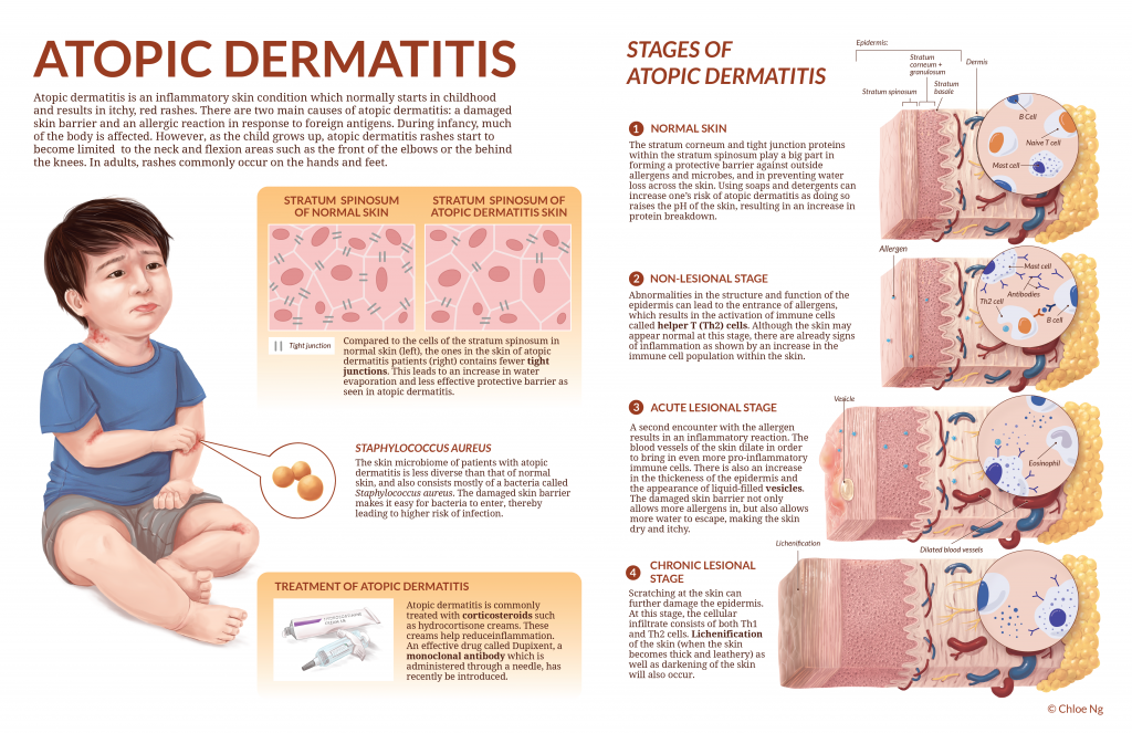 Pathogenesis of Atopic Dermatitis